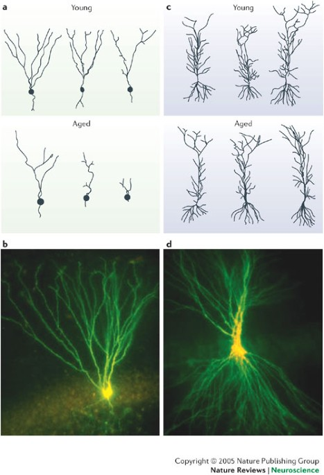 Neural plasticity in the ageing brain pdf
